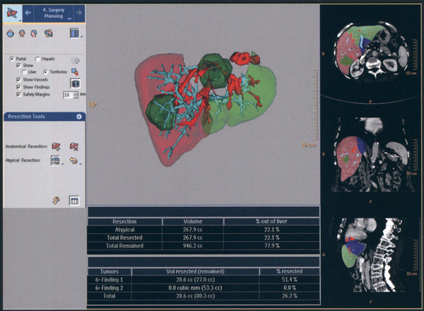 Компьютерная томография печени и желчных путей